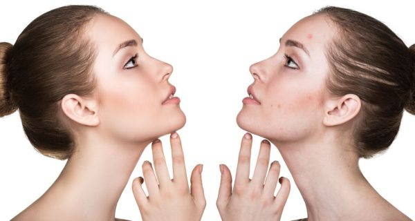 59932561 - comparison portrait of a woman with problematic skin before and after treatment