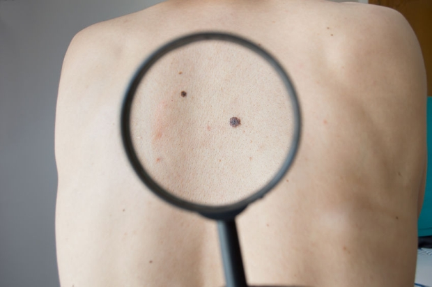 43151069 - checking melanoma on a back of a man with magnifying glass