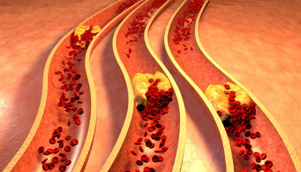 37591177 - clogged artery with platelets and cholesterol plaque, concept for health risk for obesity or dieting and nutrition problems