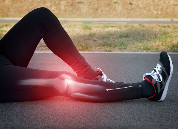 45692819 - runner knee injury and pain with leg bones visible