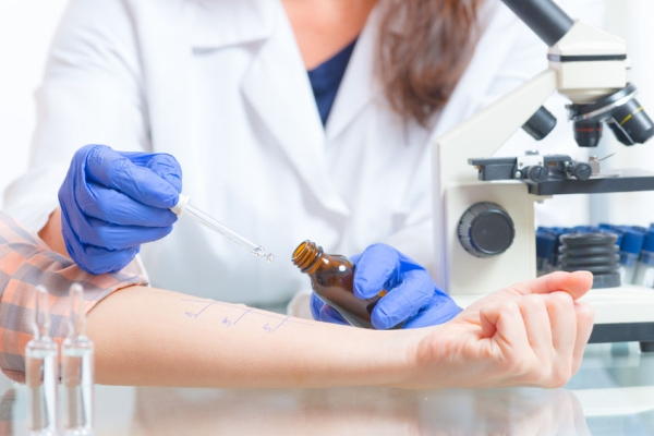 66533143 - medical doctor doing allergy tests in laboratory