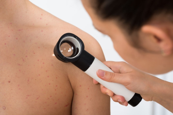 44713998 - close-up of person hands examining acne skin of man with dermatoscope