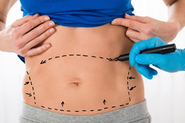 57753833 - close-up of surgeon hands drawing correction lines on woman stomach