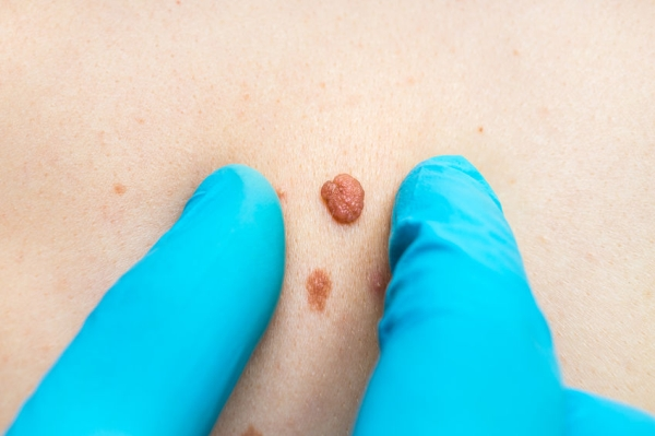 80912236 - woman with birthmark on her back, skin tags removal - cosmetic surgery