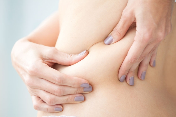 55952935 - localized fat in woman back