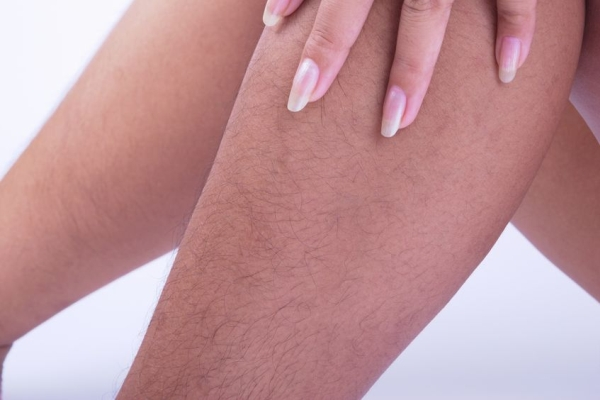 56149942 - hairy legs of women long and very ugly.