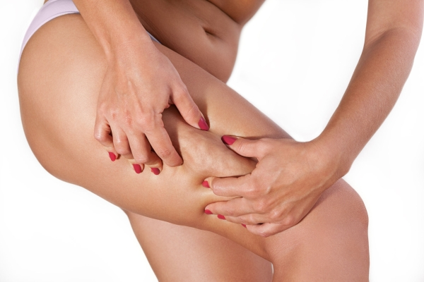 90707955 - female cellulite on thigh squeezed with her hands