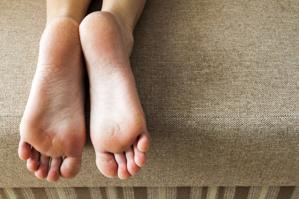 72317727 - dry cracked skin of woman feet in bed. foot treatment.