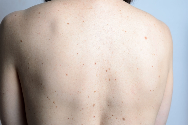 49797038 - close up detail of the bare skin on a womans back with scattered moles and freckles