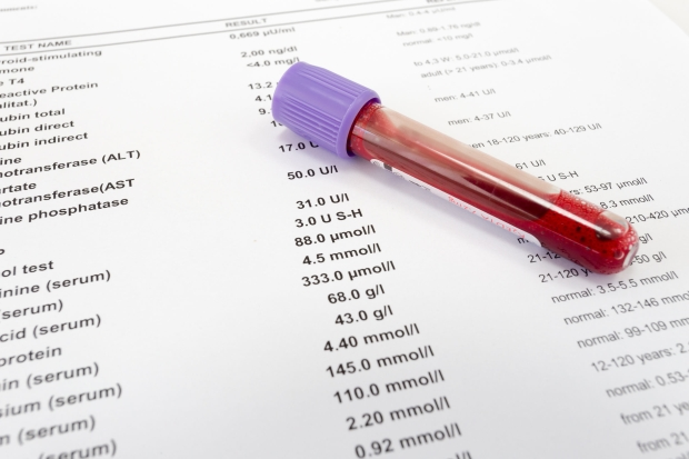 42934274 - red blood in test tube on white blank with results in colums. the results are written in english.