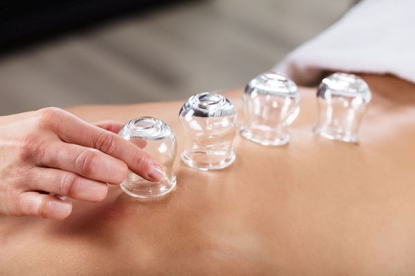 Therapist Placing Transparent Glass Cups On Person's Back In Spa